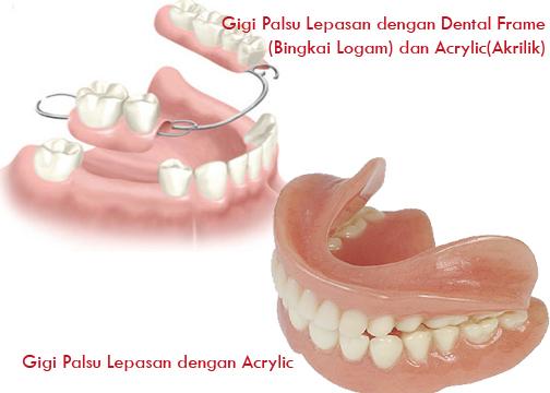 Bikin Gigi Palsu Dan Tambal Ke Ahli Gigi Atau Dokter Gigi Klinik